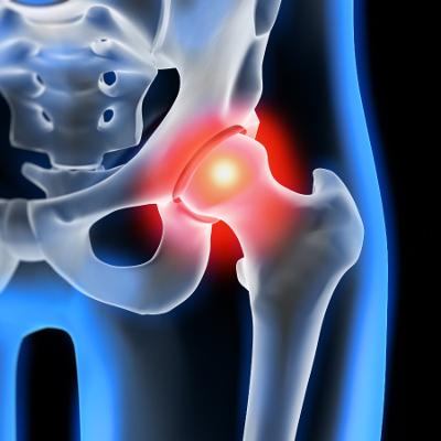aliterme-controllo-osteoporosi-servizi