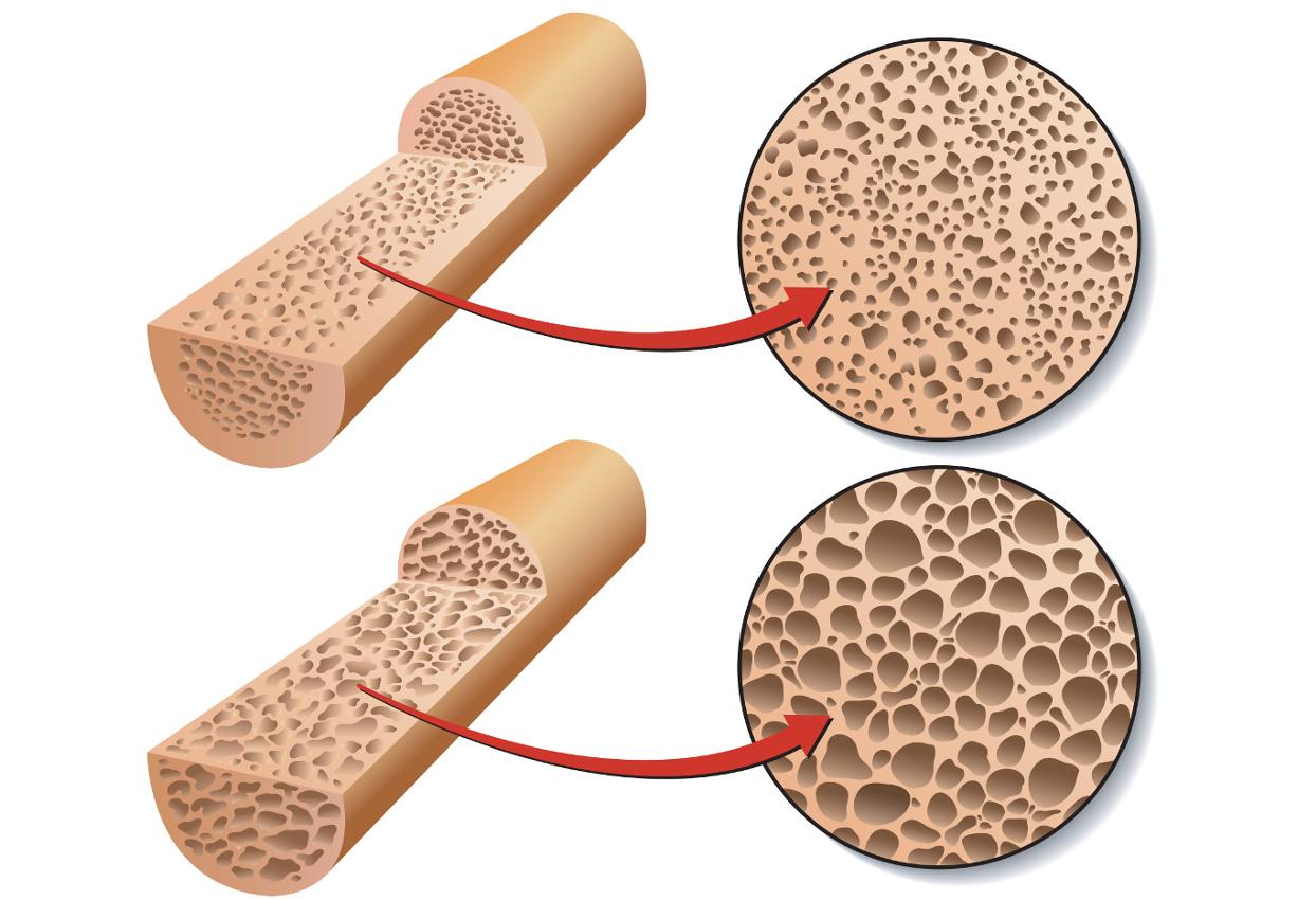 giornata-densitometria-ossea